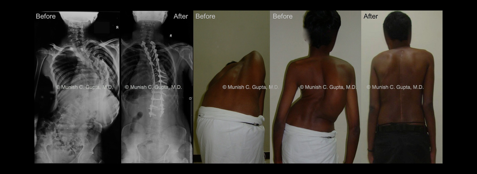 idiopathic-scoliosis-male2